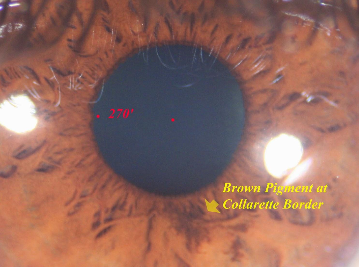 946cb74dab68 Space Risk Vs Melanin Pigmentation - Rx - (juw) - (2)