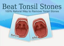 How to Get Rid of White Spots on Tonsils | Top Ways to Remove Tonsil Stones