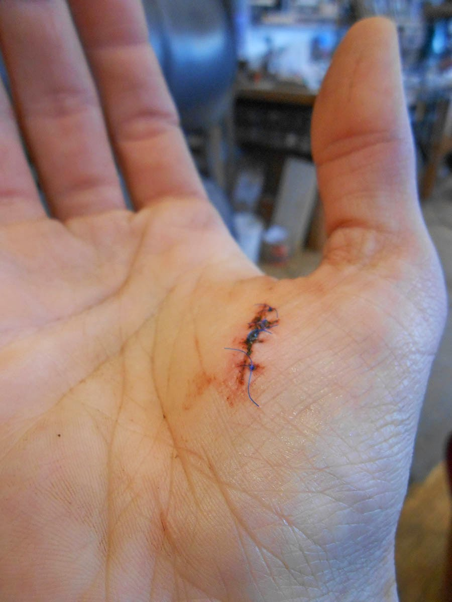 chronicles of a woodworking apprentice: splinter stitches