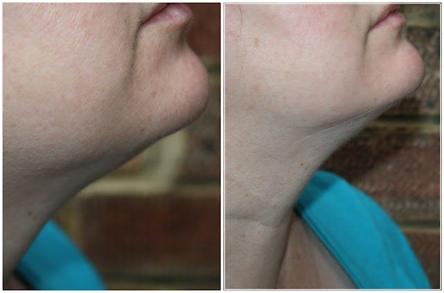 Chin Up Mask - The Non Surgical Face Lift!