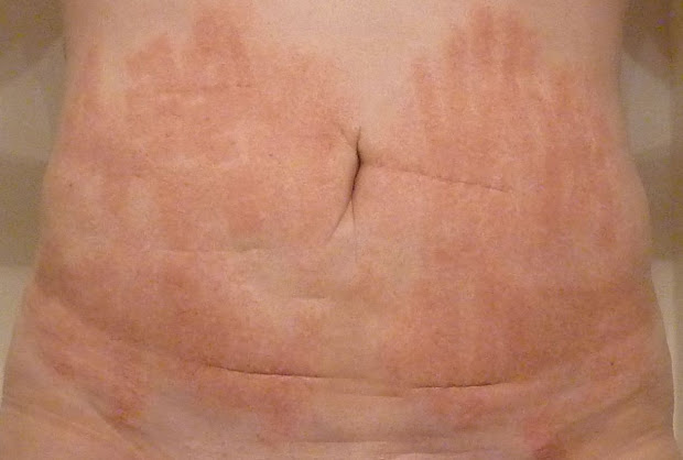 Stretch Marks Laser Before and After