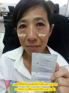 Instantly Ageless ลดถุงใต้ตา ไม่ต้องศัลยกรรม สั่งซื้อโทร.089-447-5597
