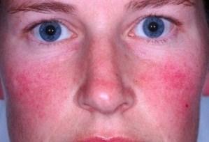 Penyebab Dan Cara Mengobati Penyakit Rosacea