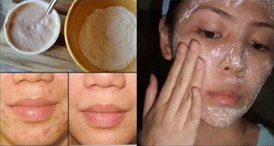 Esta mascarilla Elimina Mágicamente manchas, cicatrices de acné y arrugas Después de Segundo Uso