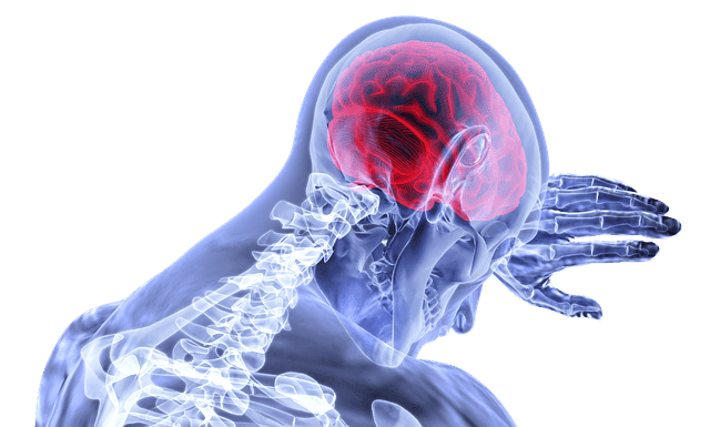 Cerebral Embolism Or Vascular Cerebral Blockage