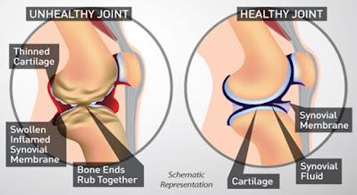 ubat sakit lutut shaklee