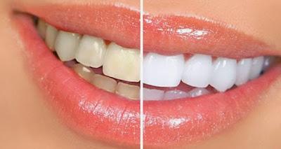Tips Memutihkan Gigi Dengan Susu Bubuk Dan Pasta Gigi
