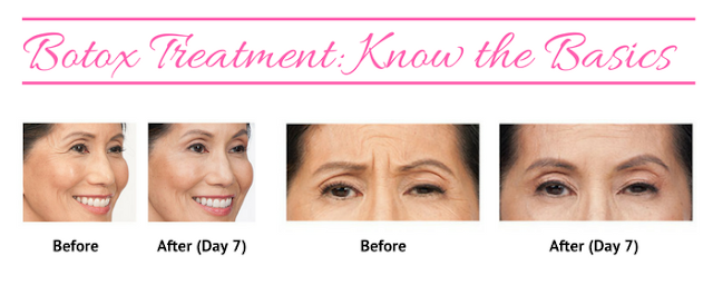 Botox Treatment: Know the Basics