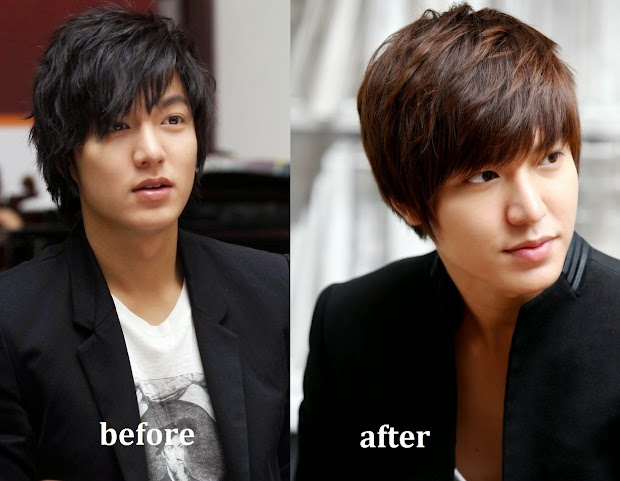 20 Park Min Young Plastic Surgery Before And After Pictures And