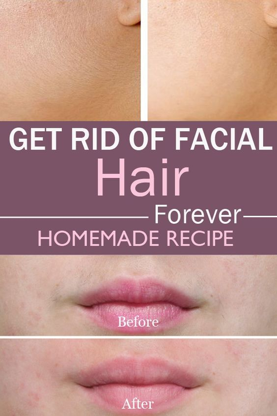Home Remedy For Facial Hair