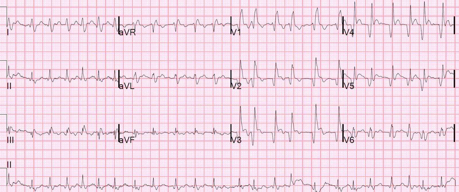 Dr. Smith's ECG Blog: Dyspnea, Right Bundle Branch block, and ST ...