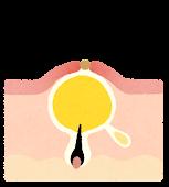毛穴のイラスト(ニキビ)