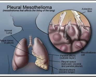Mesothelioma Lung Cancer