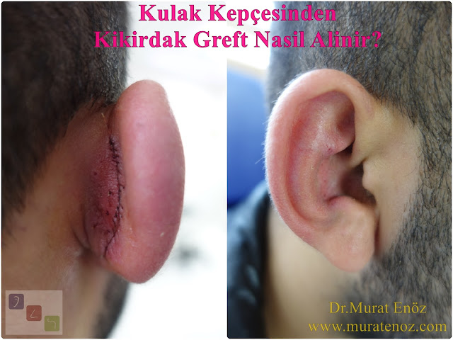 Auricular Cartilage (Auricular Cartilage) Graft in Revision Rhinoplasty - Why auricle cartilage graft is needed in revision rhinoplasty operations? - When auricle cartilage graft is used in revision nose job surgeries? - How to taken the cartilage graft from the auricle (auricular conchal cartilage)? - Recommendations after the cartilage graft taken from the auricle  - Does the shape of the auricle change after the cartilage graft taken from the auricle? - Why is a cartilage graft removed from the auricle? - In which cases is the cartilage graft used from the auricle? - Use of cartilage graft taken from the ear for revision nose aesthetic - Cartilage graft taken from the auricle - What to do after taken of the cartilage graft from the auricle? - Auriculer conchal cartilage - Use of auricular conchal cartilage in nose aesthetic surgery