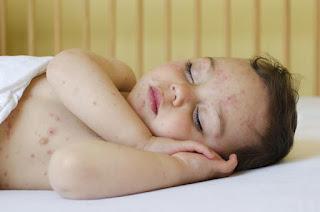 Obat Gatal untuk Anak