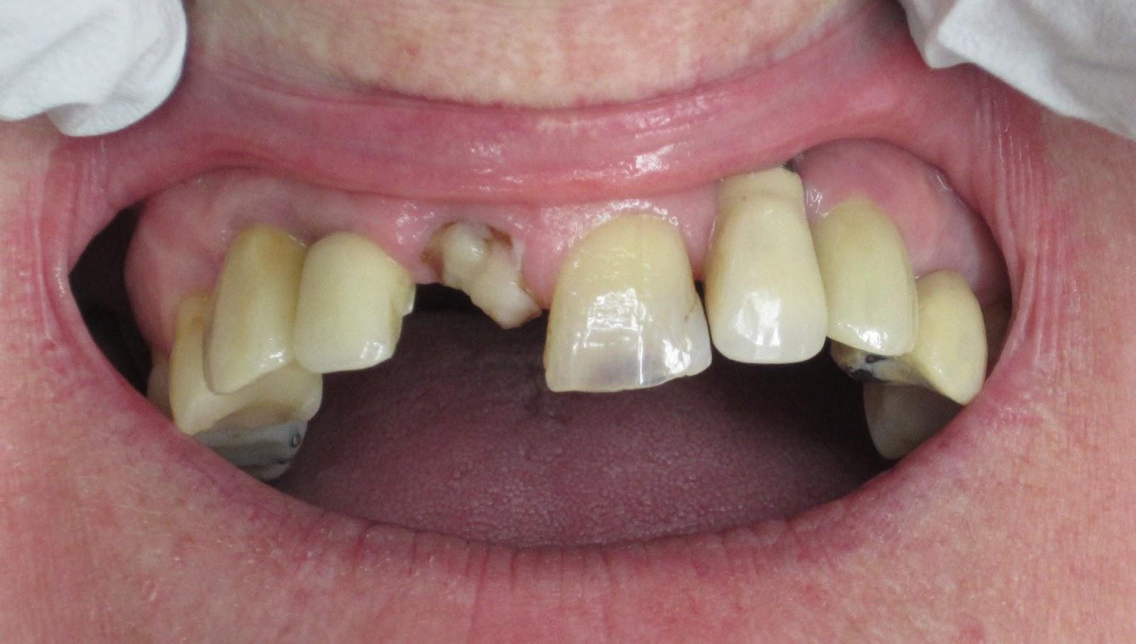 Mustat Hampaat
