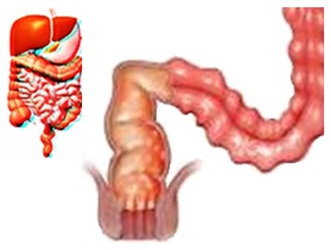 Chronic Diarrhea and its better effective treatment