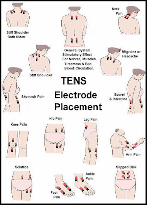 TENS Electrode Placement Guide
