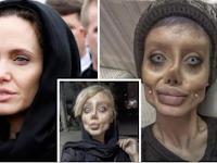 Heboh! Ngaku Oplas 50 Kali Demi Mirip Angelina Jolie, Wanita Ini Akhirnya Ungkap 7 Fakta Mengejutkan