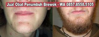 Jual Minoxidil Penumbuh Brewok Bandung