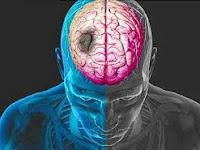 Bagaimana Pengobatan Herbal Penyakit Stroke Ringan?