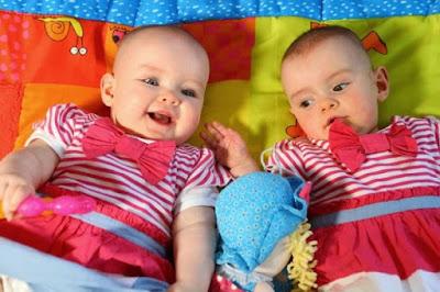 Lima Kisah Kehidupan Orang Kembar Paling Aneh di Dunia