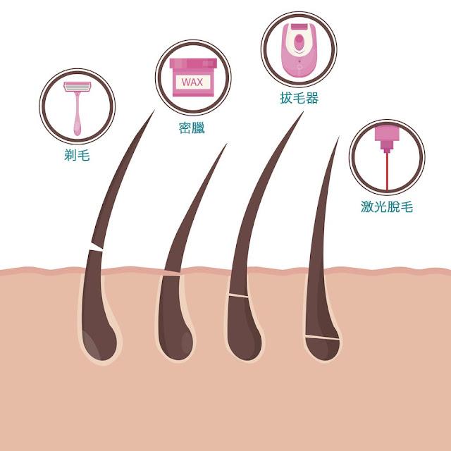 إزالة الشعر بدون ألم وبطريقة سهلة للنساء فقط