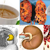 3 Drinks That Could Easily Filter Kidneys From Harmful Substances
