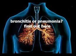 Pengobatan Bronkhitis Kronis secara herbal