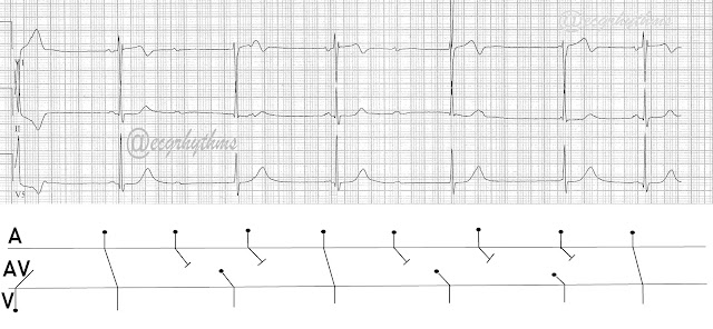 ECG Rhythms: Advanced Heart Block