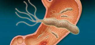 ماهي اعراض واسباب جرثومة المعدة helicobacter pylori بالتفصيل وكيفية الوقاية