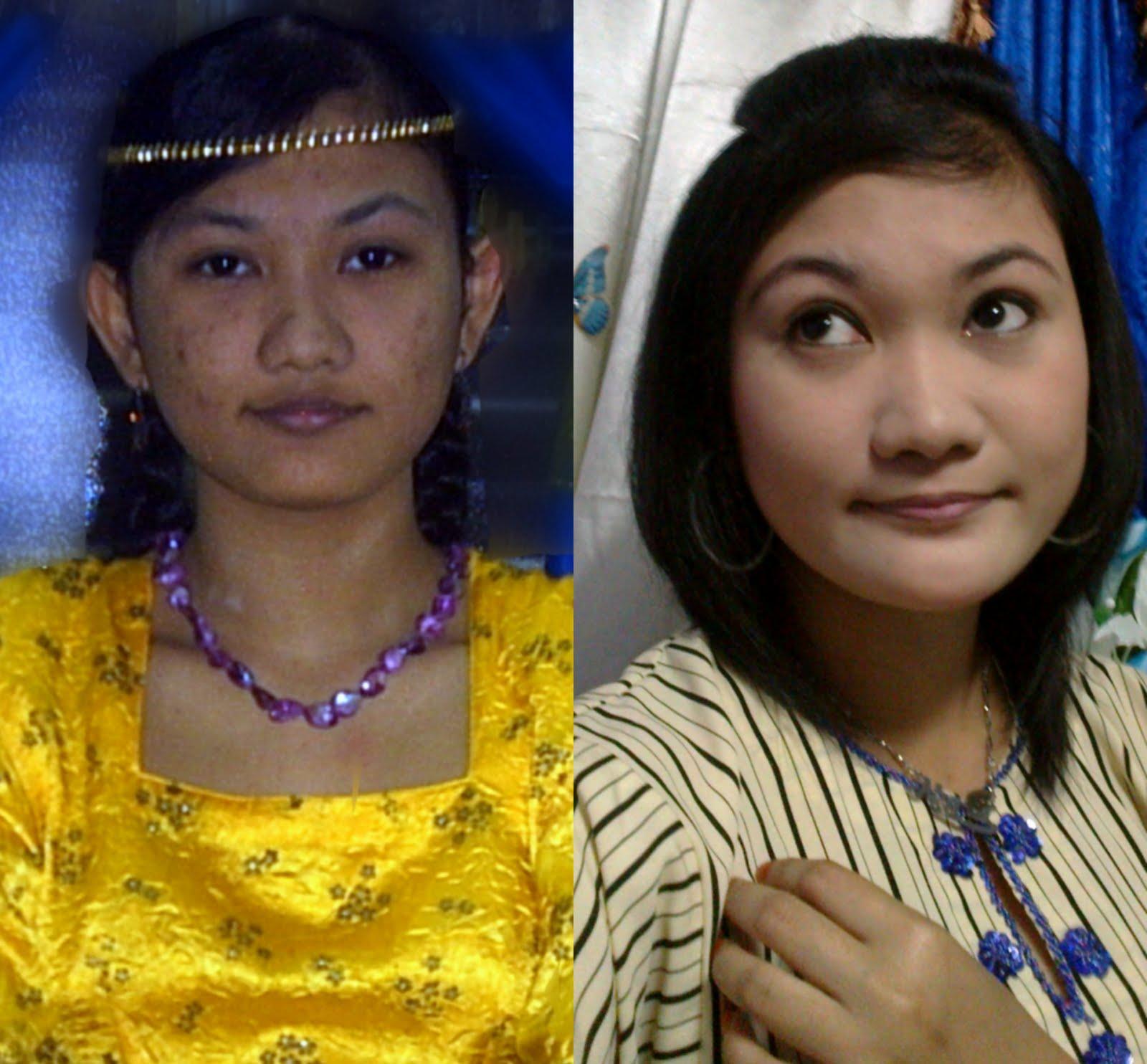 Nur Adila Cara Mengurangkan Jerawat Dan Menghilangkan: Princess Nurul: Hilangkan Parut Jerawat