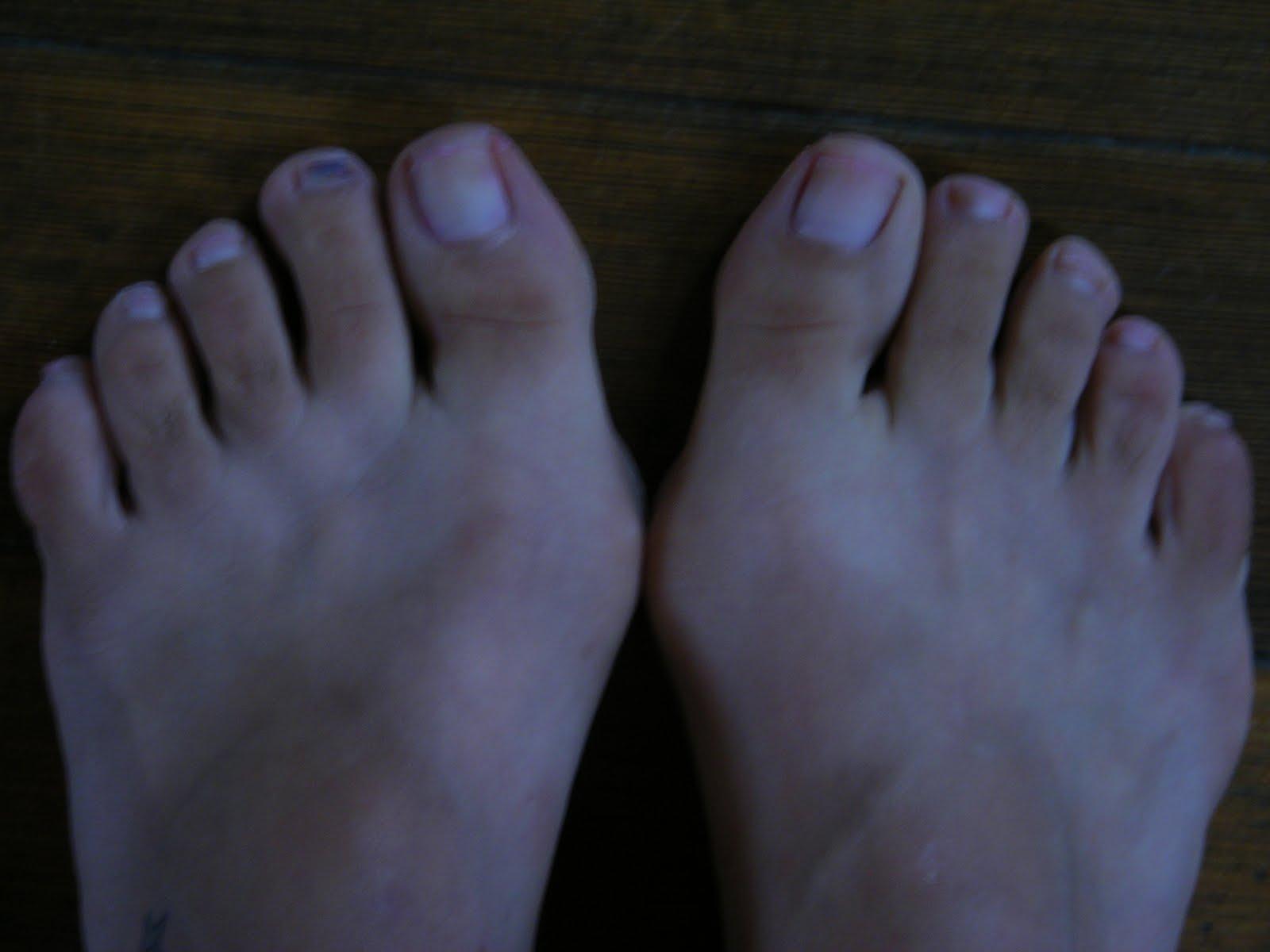 Gross Feet