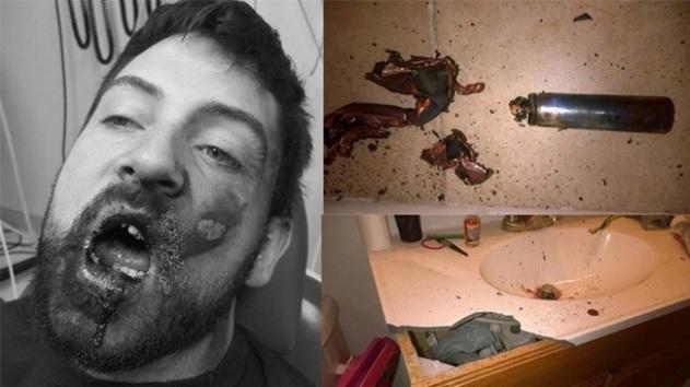 Kembali Makan Korban, Wajah Seorang Pria Hancur Setelah Menghisap Vape