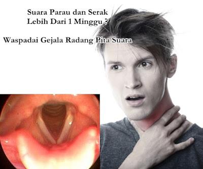 Obat Herbal Radang Pita Suara Yang Sudah Kronis