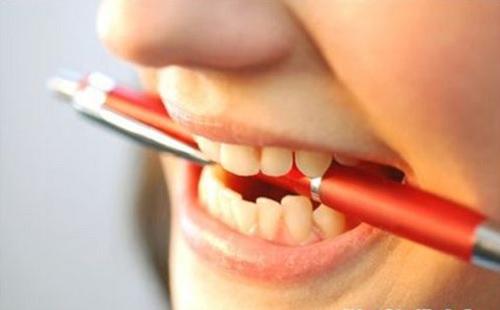 những điều nên biết về trồng răng sứ titan -5