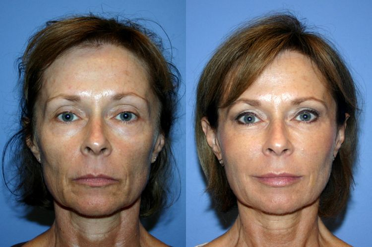 Are You Aware Facial Rejuvenation Exercises Taking The Planet By Storm Increasingly More People Showing Great Before And After Photos Of Themselves