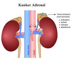 Penyebab dan Gejala Kanker Kelenjar Adrenal