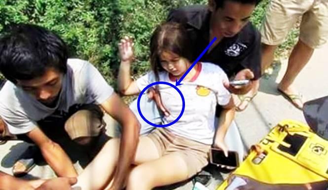 gadis cantik terlibat kecelakaan di Filipina