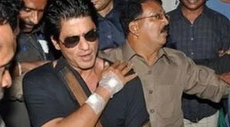 हादसे का शिकार हुए शाहरुख खान, घायल