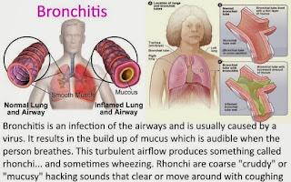 Bronkitis-adalah-jangkitan-pada-saluran-pernafasan