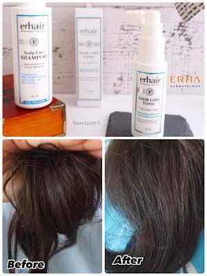 hasil-pemakaian-erha-erhair-perawatan-rambut.jpg