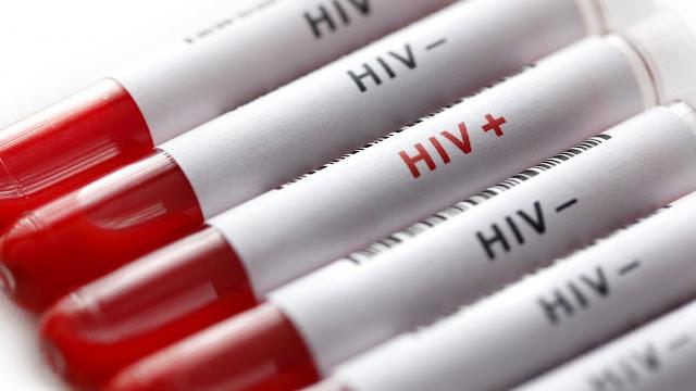 Mengapa memeriksakan HIV begitu penting?