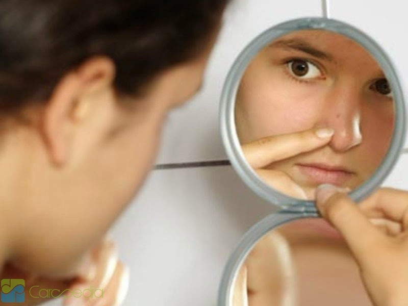 Treat and Prevent Acne by Natural Ways
