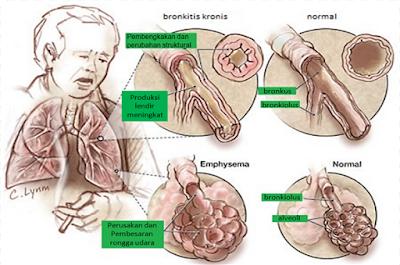 komplikasi-bronkitis-kronis