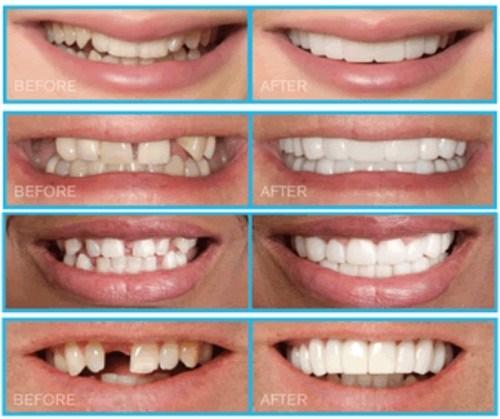 (Bọc răng sứ thẩm mỹ giúp khôi phục tính thẩm mỹ cho răng trong nhiều trường hợp)