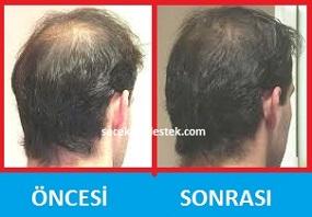 saç mezoterapisi öncesi ve sonrası 1