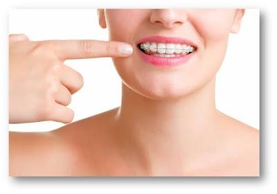 Quelle est cette procédure dentaire ?