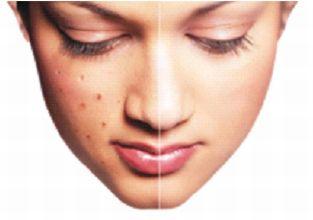ખીલની સારવાર-સુજોક થેરાપી| Sujok Treatment for Pimples