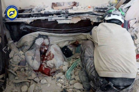 Πεθαίνοντας στο Χαλέπι: Το σκληρό πρόσωπο του πολέμου....